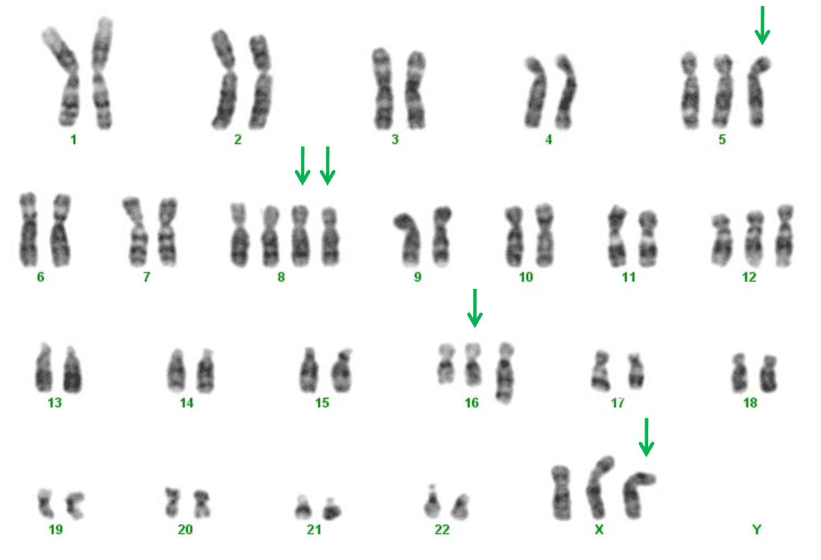 Karyotyping